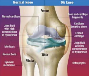 knee-arthi