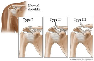 shoulder-separation