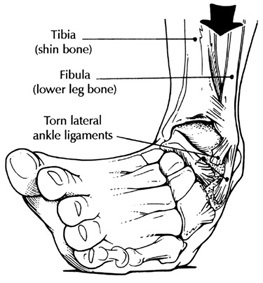 glass ankle