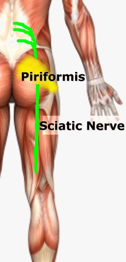 Piriformis Syndrome Fit For Life Vaughan Chiropractor Physiotherapy