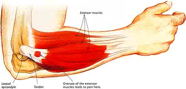 Tennis Elbow vs. Golfers Elbow