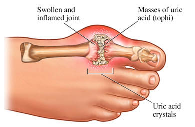Redness, Tender, Painful Joints – Can this be Gout?