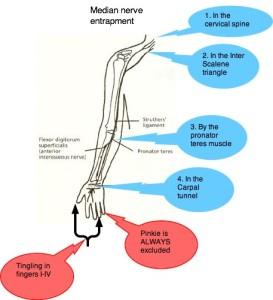 Median Nerve Entrapment Sites