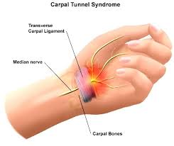 Carpal Tunnel Syndrome