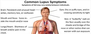 Lupus Fit For Life Vaughan Chiropractor Physiotherapy