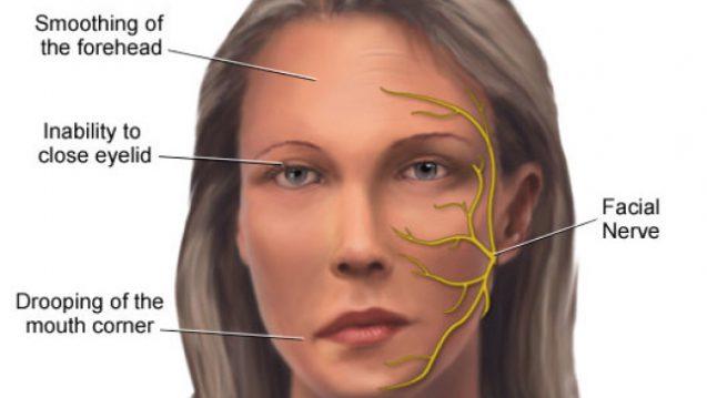 Facial Pain